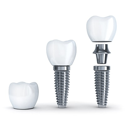 The Anatomy Of A Dental Implant At Manchester Advanced Dental