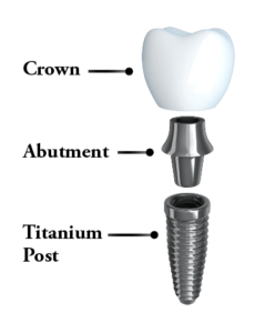 A dental implant broken down to its three parts.